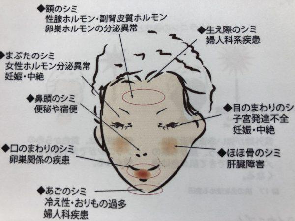 顔に出来るシミの場所と原因を明記しているイラストです