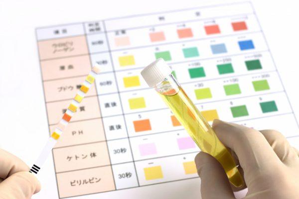 医療機関での検査シート