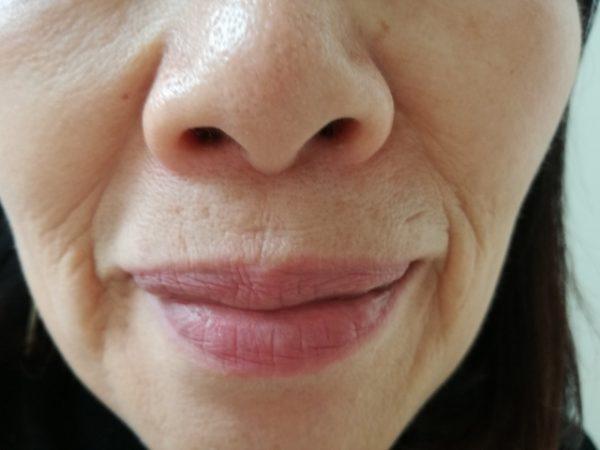 顔の老化現象